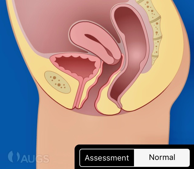 Normal uterine